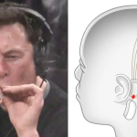 elon-musk-stream-music-brain-chip-implant-neuralink
